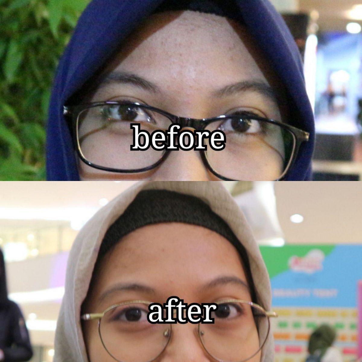 Before after bruntusan